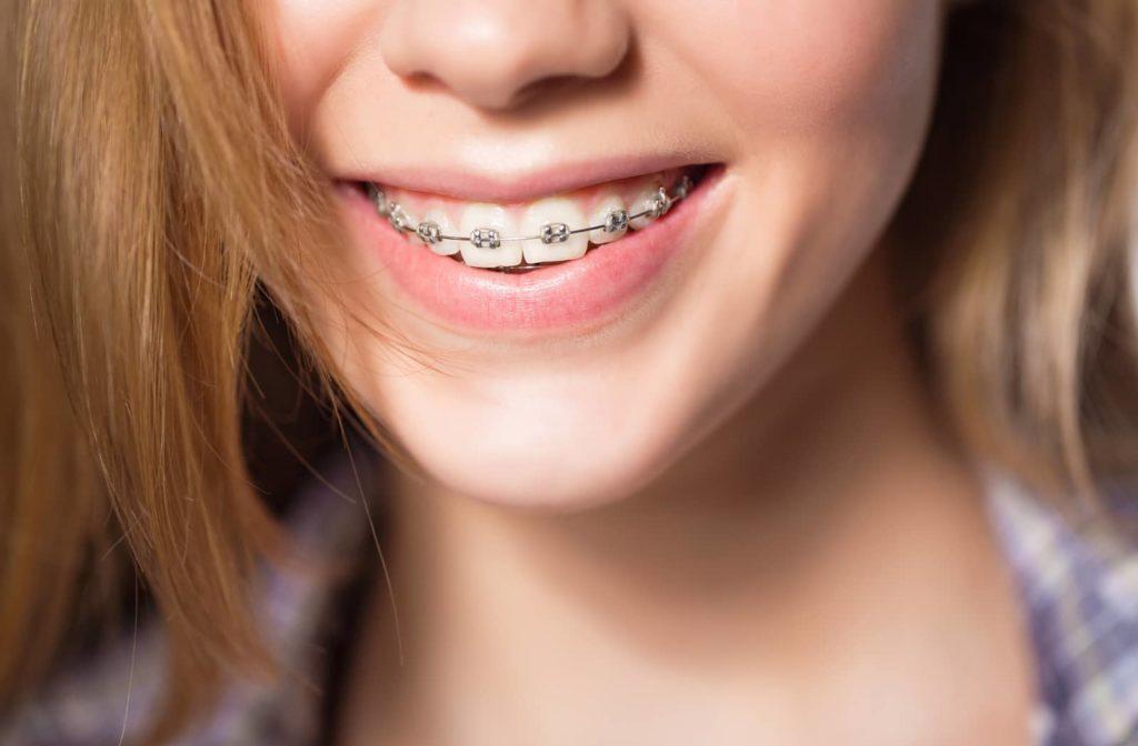 A girl wearing braces to straighten her teeth