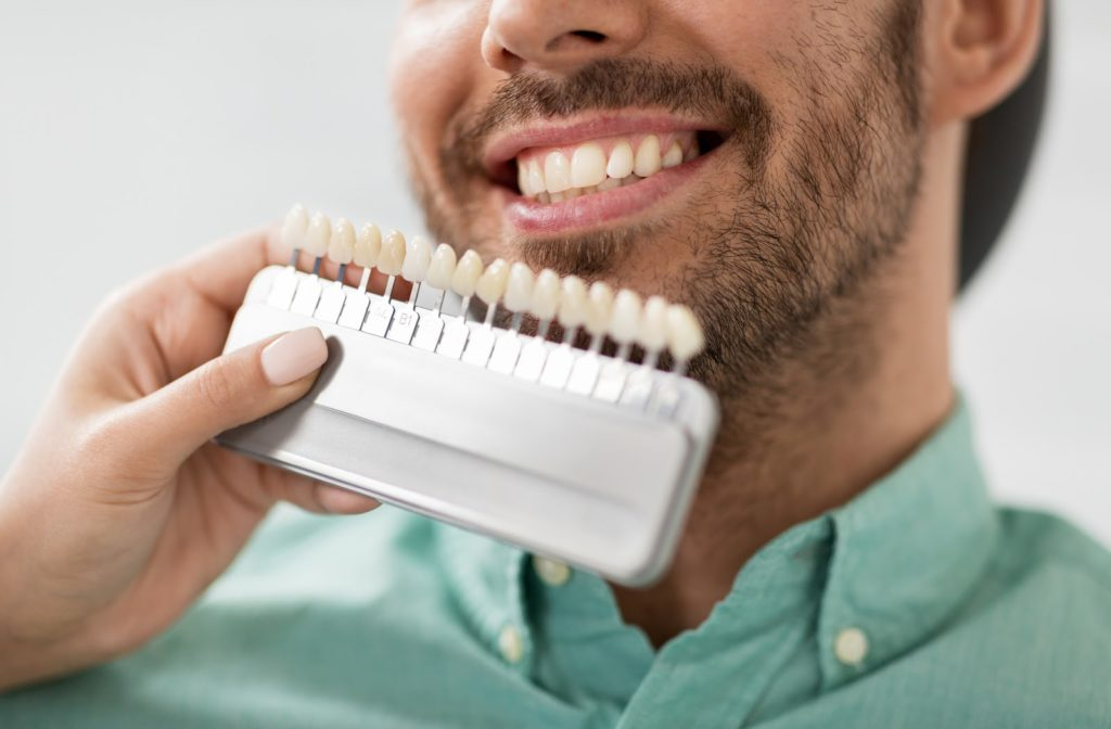 comparing a veneer shade guide to a patient smiling