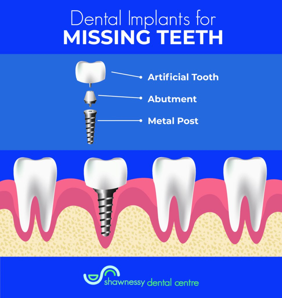 The three different components of a dental implant