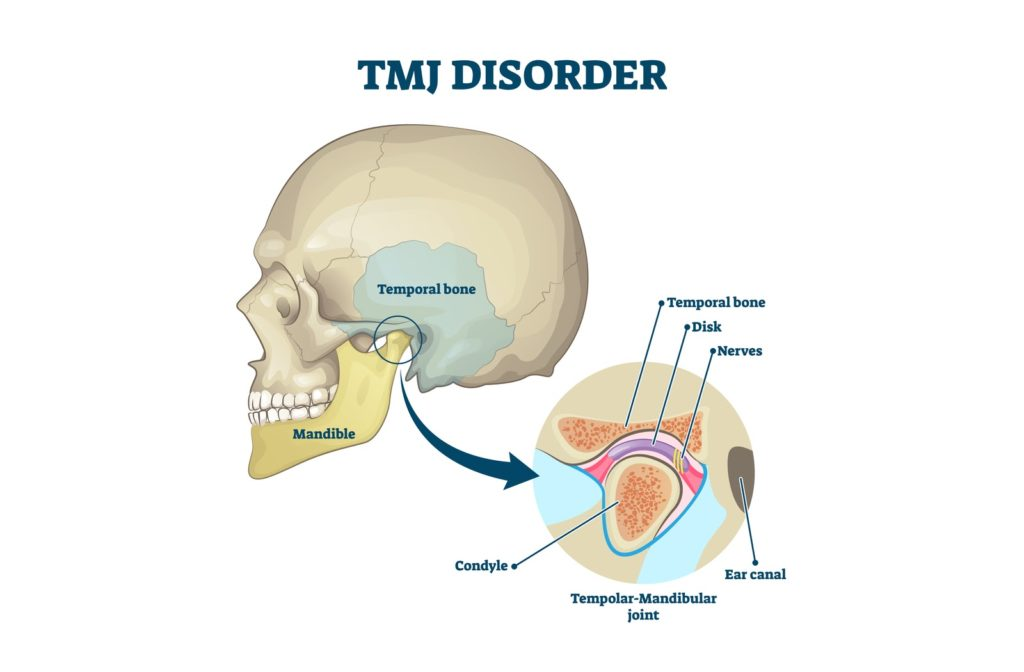 TMJ illustration showing labeled jaw with explanation.