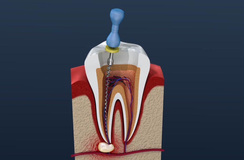 3D illustration of root canal treatment process.