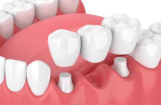 3D illustration of dental bridge with white background