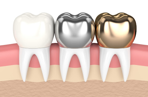 3D illustration of different dental crowns made from different material.