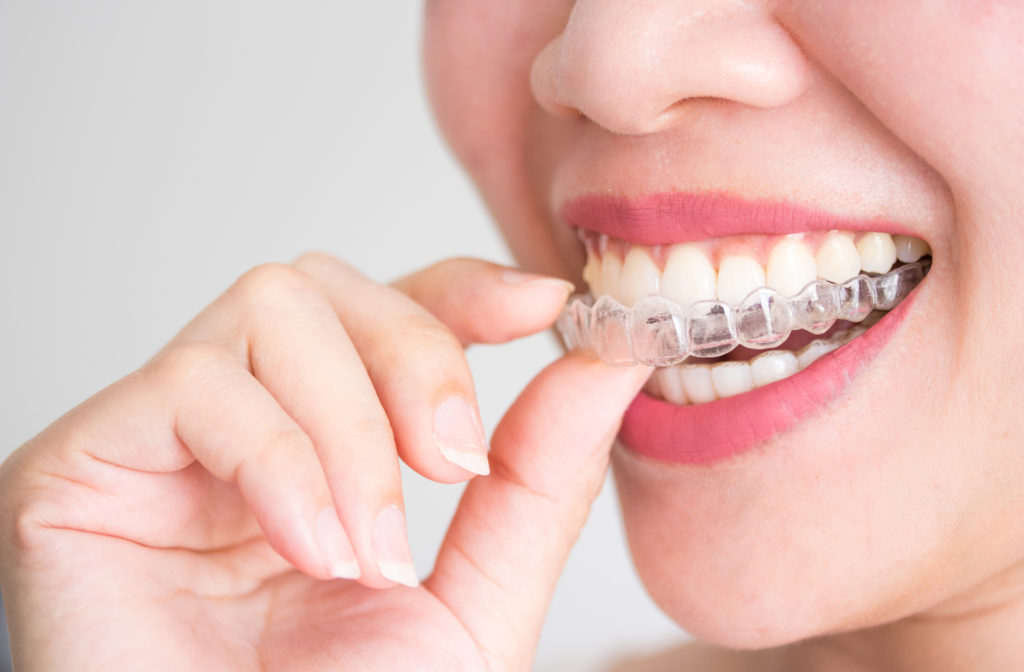 Close up of happy women putting on Invisalign braces in mouth.