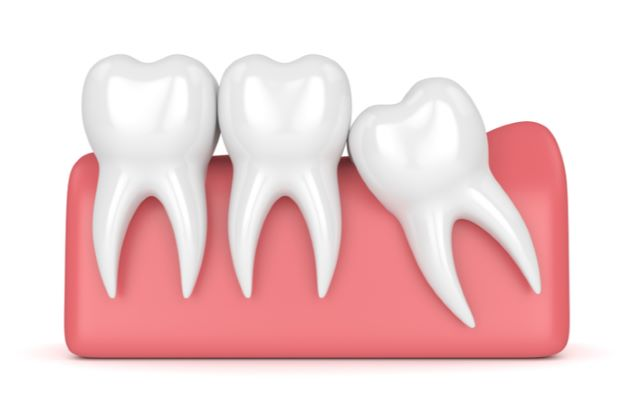 3D rendered image of wisdom teeth impacting other teeth in mouth